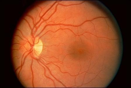 Imagem da notícia: Ecstasy prejudica visão e cérebro