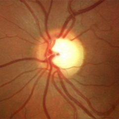 Imagem da notícia: Cura do glaucoma poderá estar na sua origem