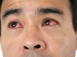 Imagem da notícia: Quase um terço dos portugueses sofre de conjuntivite alérgica