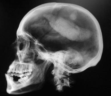 Imagem da notícia: Estimulação magnética melhora a visão