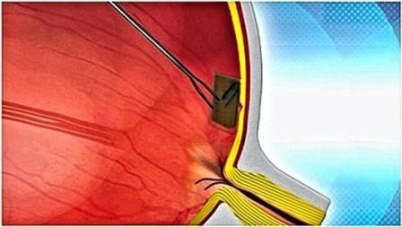 Imagem da notícia: Bio Retina devolve visão a pessoas cegas