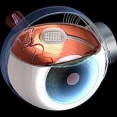 Imagem da notícia: Australianos apresentam olho biónico