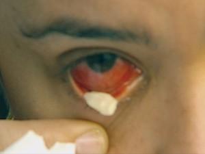 Imagem da notícia: Doença rara no Brasil ainda não tem explicação científica