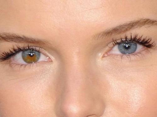 Imagem da notícia: Mudar a cor dos olhos de vez