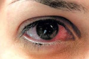 Imagem da notícia: Doença do olho seco mais comum em zonas poluídas