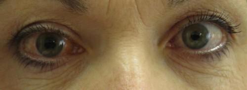 Imagem da notícia: Anticoncecionais podem aumentar risco de contrair glaucoma