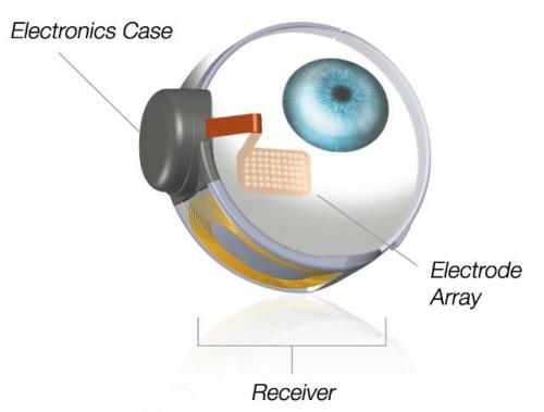 Imagem da notícia: Restituir a visão através da tecnologia