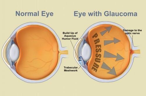 Imagem da notícia: Semana Mundial do Glaucoma é em setembro