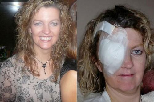Imagem da notícia: Óculos de sol baratos contribuiram para mulher contrair cancro
