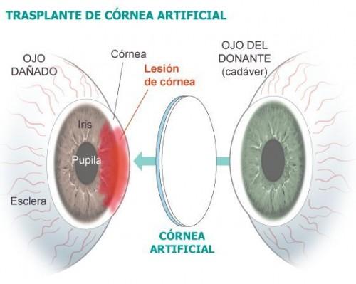 Imagem da notícia: Córnea artificial implantada pela primeira vez em Granada