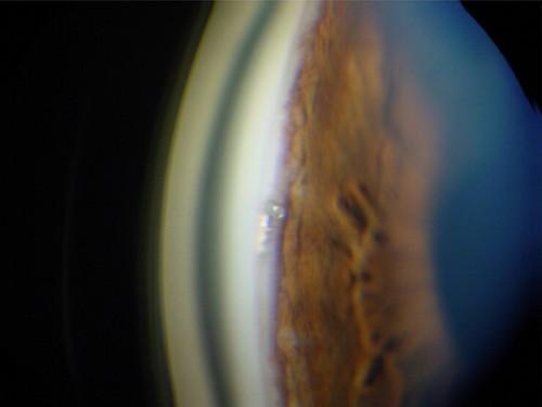 Imagem da notícia: Novo método para tratamento do glaucoma?