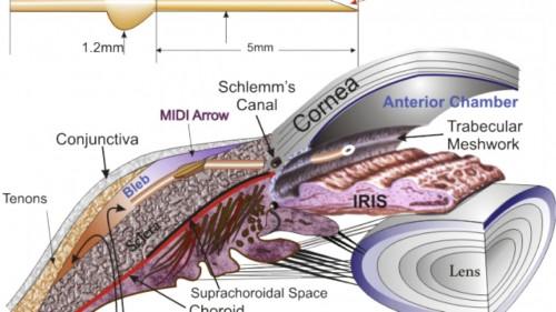 Imagem da notícia: Glaucoma: novo procedimento testado