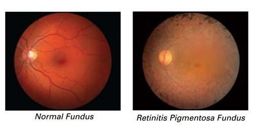 Imagem da notícia: Edição de genes poderá travar cegueira