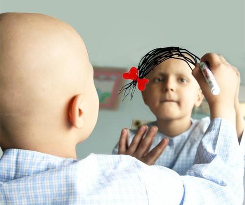 Imagem da notícia: Crianças sobreviventes de cancro podem ter visão afetada
