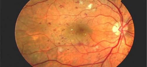 Imagem da notícia: Terapia inovadora poderá reverter retinopatia diabética