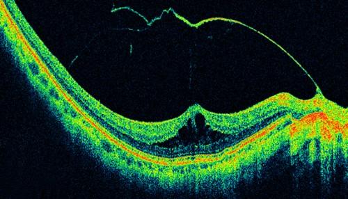 Imagem da notícia: OCT pode ser aplicada além oftalmologia