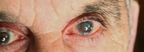 Imagem da notícia: Glaucoma: Hospital de Loulé é a primeira unidade do sul com cirurgia inovadora