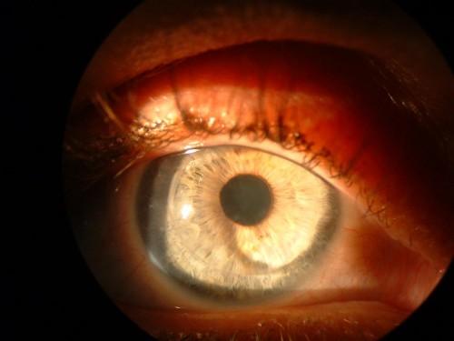Imagem da notícia: Feito o primeiro transplante de retina com células de outra pessoa