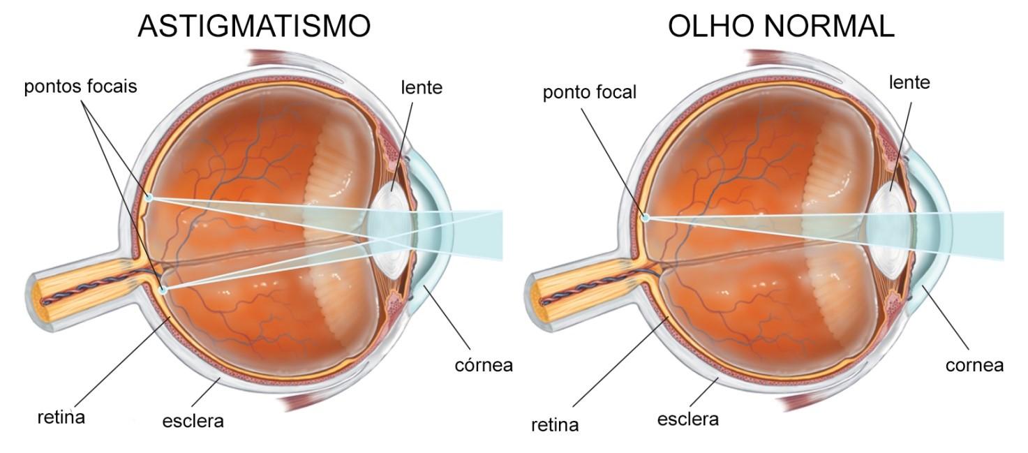 Imagem da notícia: Alcon apresenta tecnologias para gestão de astigmatismo na cirurgia da catarata