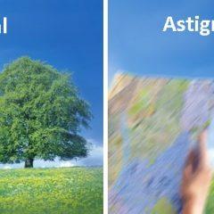 Imagem da notícia: Estudo revela que astigmatismo piora após cirurgia às cataratas