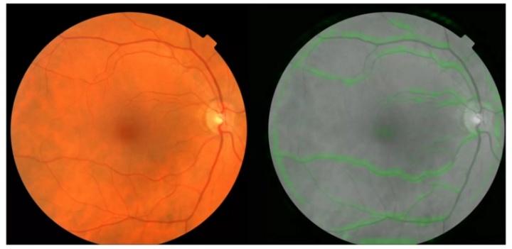 Imagem da notícia: Detetar doenças cardíacas através dos olhos?