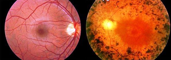 Imagem da notícia: Vitamina A atrasa o progresso da retinite pigmentosa