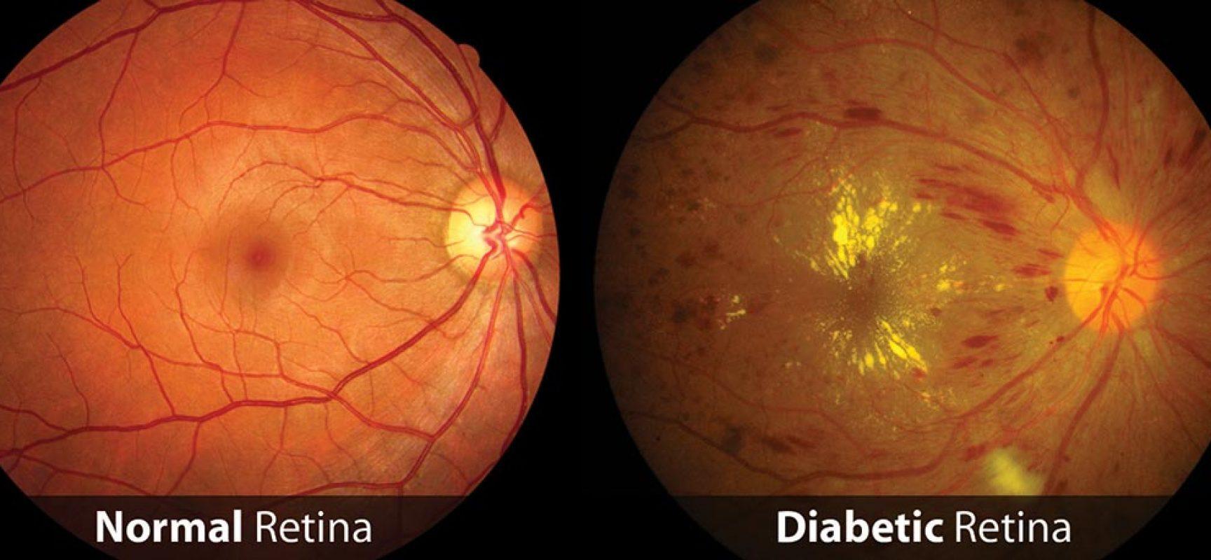 Imagem da notícia: Retinopatia diabética: da diabetes à cegueira