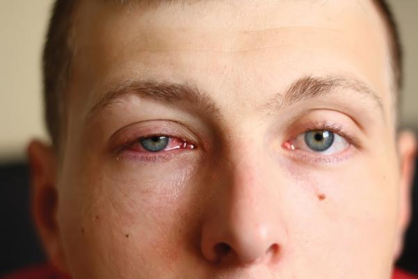 Imagem da notícia: No verão 20% dos portugueses sofre de conjuntivite alérgica