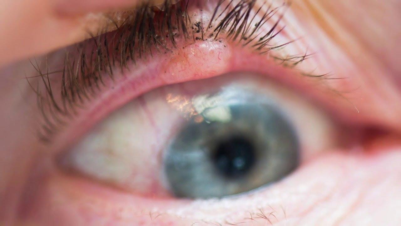 Imagem da notícia: Novo estudo correlaciona melanoma e cancro ocular