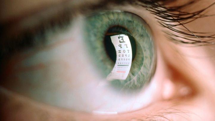 Imagem da notícia: Movimentos oculares podem revelar esclerose múltipla