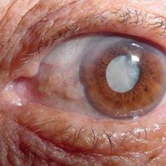 """Imagem da notícia: Colírio que """"derrete"""" cataratas nos olhos?"""