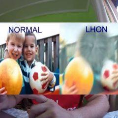 Imagem da notícia: LHON: doentes portugueses integram estudo internacional