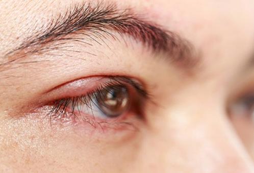 Imagem da notícia: Doença de Fabry pode afetar olhos