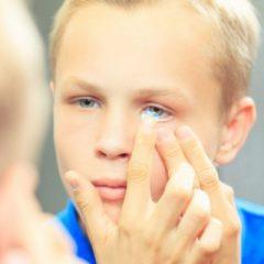Imagem da notícia: Estudo: novas ideias sobre o controlo da miopia em crianças com lentes de contacto