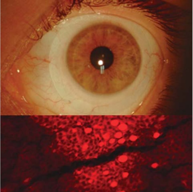 Imagem da notícia: Que impacto poderão ter as lentes esclerais na morfologia das células conjuntivais?