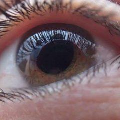 Imagem da notícia: Descoberta nova estratégia para tratamento do glaucoma