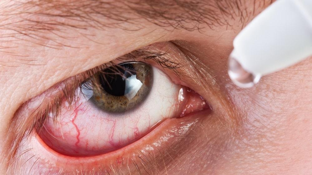 Imagem da notícia: Olho seco afeta saúde física e mental
