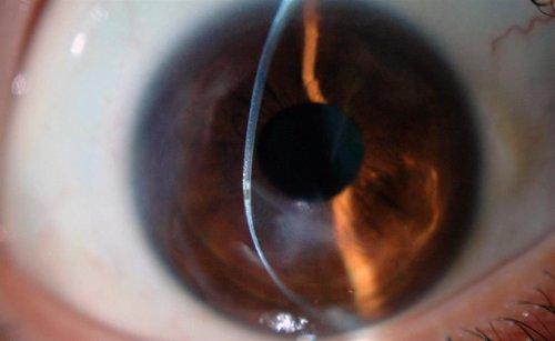 Imagem da notícia: Ceratocone é a principal causa de transplante da córnea em jovens