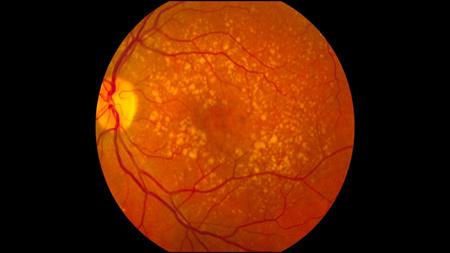 Imagem da notícia: Estudo da Universidade de Maryland identifica novo mecanismo que pode causar DMRI