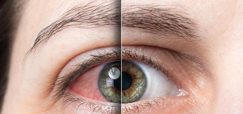 Imagem da notícia: Especialistas alertam para o aumento de casos de olho seco