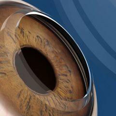 Imagem da notícia: Células estaminais podem melhorar visão de pessoas com doença ocular
