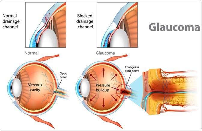 Imagem da notícia: Investigação de Birmingham abre caminho a uma nova terapia anti fibrótica para o glaucoma
