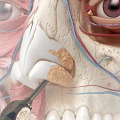 Imagem da notícia: CUF Descobertas realiza Cirurgia Endoscópica da Órbita em direto