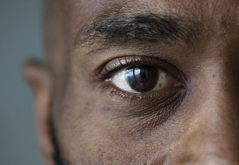Imagem da notícia: Tiróide, a doença auto-imune que pode provocar perda de visão