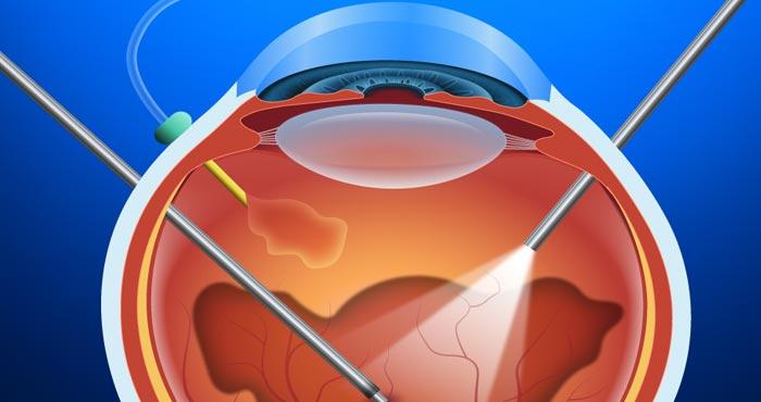 Imagem da notícia: Hospital Internacional dos Açores realiza primeira cirurgia Vitrectomia