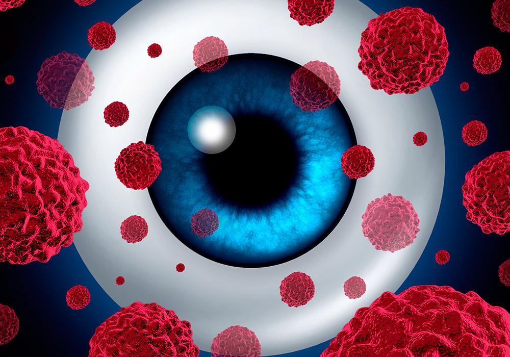 """Imagem da notícia: Webinar """"Oncologia Ocular & Saúde Pública"""" decorre a 16 de junho"""